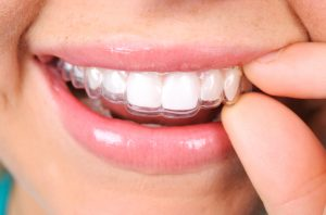 Clear braces in New Orleans are removable
