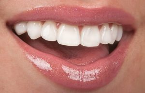 Closeup of flawless smile after cosmetic dental treatments near Metairie