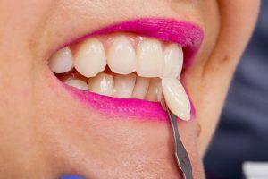 Woman at dentist getting temporary veneers